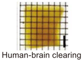 The clearing of human brain tissue large blocks by CUBIC